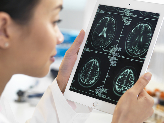 Optum is using AI to predict Alzheimer's disease