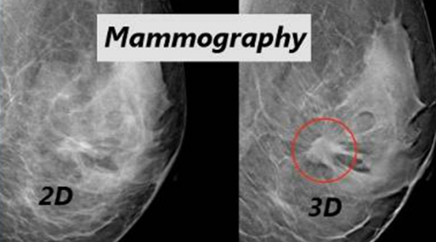 3 D Mammography Bests Digital Screenings In Costs