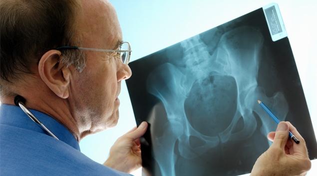 Medicare reimbursement rates for orthopedic trauma have fallen sharply