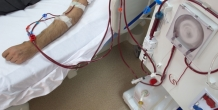 A more cost effective, clinically sound approach to hemodialysis treatment