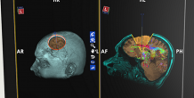 University of Michigan adds neurosurgical technology to plan for new operating rooms