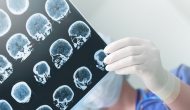 Study: US healthcare unprepared for Alzheimer's breakthroughs