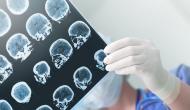 Study: US healthcare unprepared for Alzheimer's breakthroughs