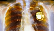 Pacemaker X-ray.