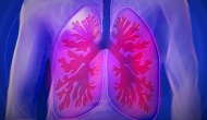 COPD readmissions can be reduced through positive airway pressure therapy, study says