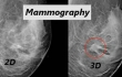 3-D mammography bests digital screenings in costs, diagnosis