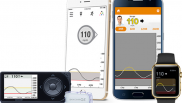 CMS relents, opens up smartphone-connected CGMs for reimbursement